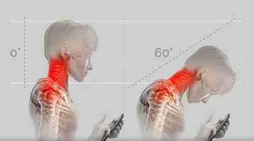Neck Pain Treatment in Durham