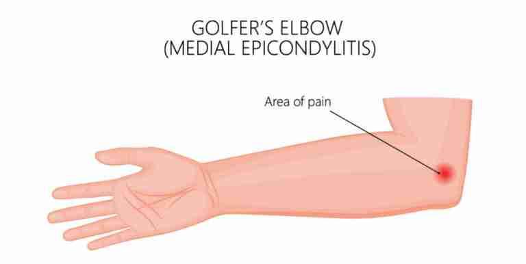 Golfers-Elbow
