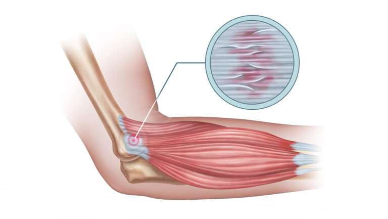 tennis elbow in courtice