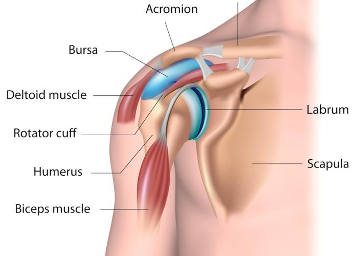 shoulder impingement in courtice